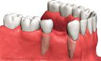 protesis asuencia del diente