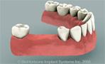 protesis asuencia de dos dientes