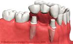 protesis puente sobre dientes