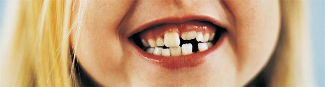Ortodoncia Interceptiva Niños