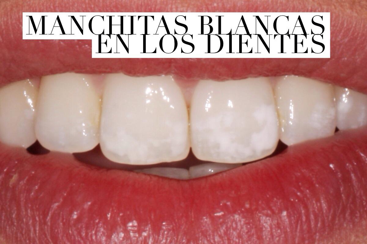 Manchas blancas en los dientes, ¿qué son?