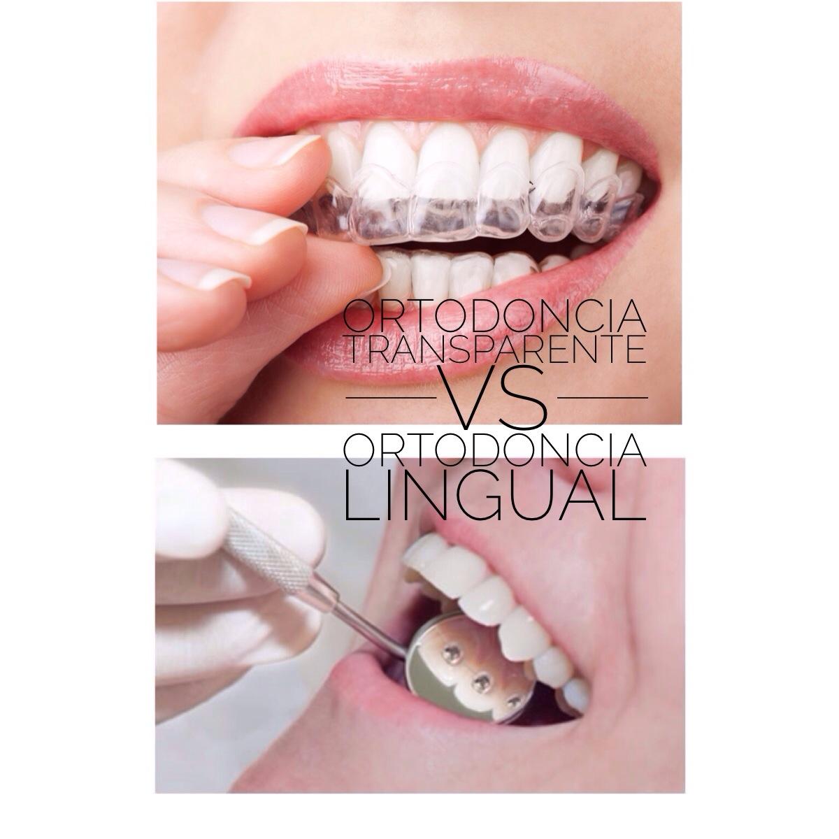 ¿Qué es mejor para mi, la ortodoncia invisible (Invisalign) o la ortodoncia lingual?