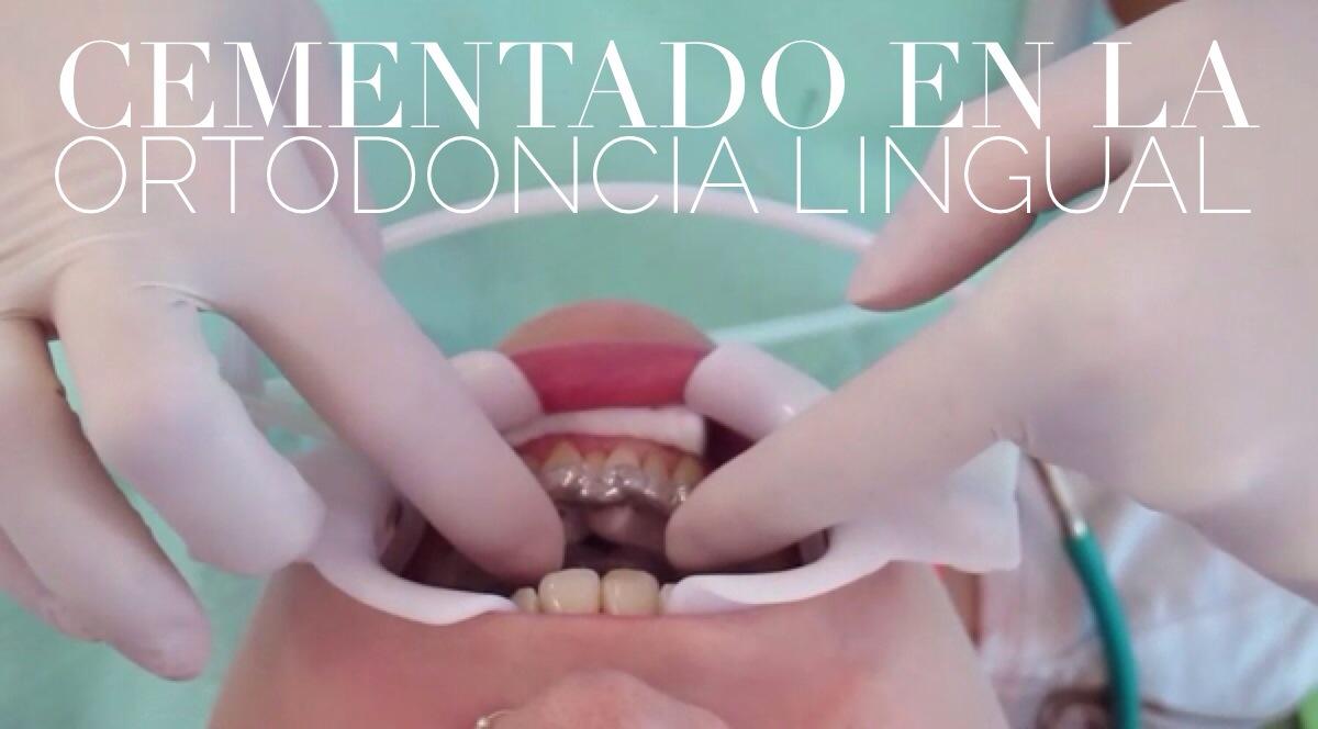 El cementado indirecto en la ortodoncia lingual