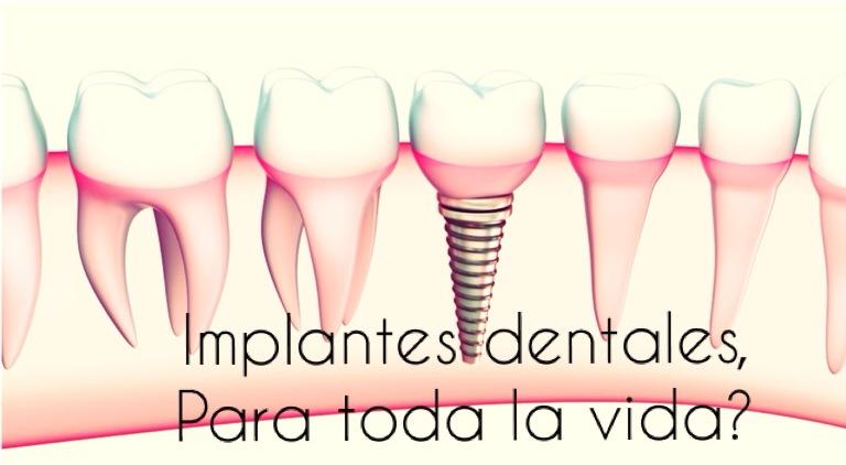 Implante dental ¿para toda la vida?