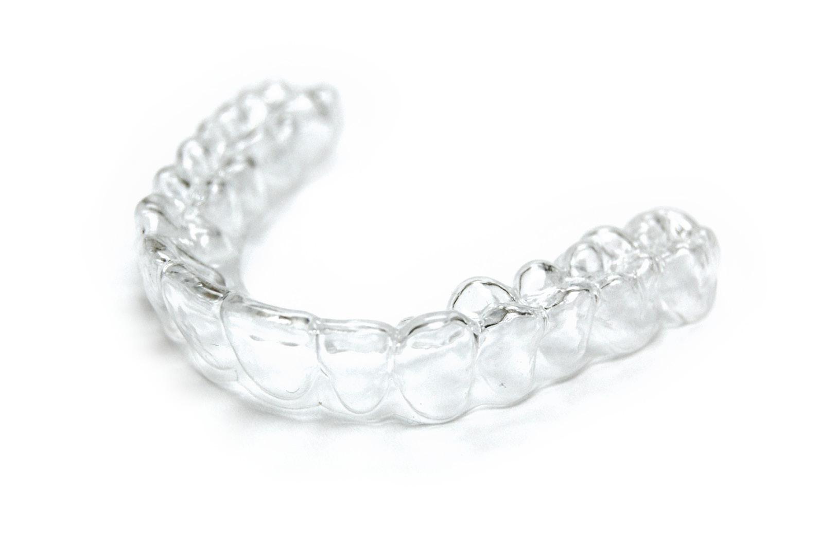 Retenedores de ortodoncia, ¿son necesarios?