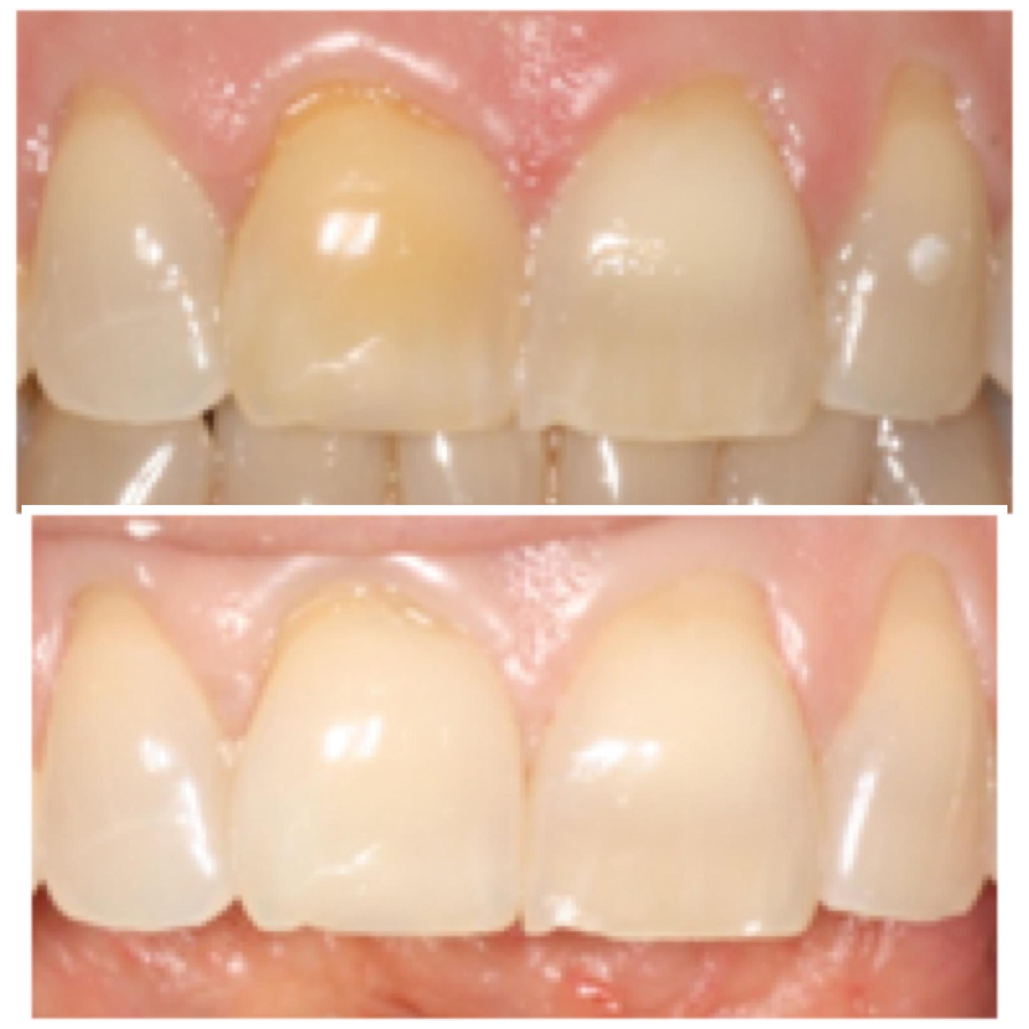 Tengo un diente negro, ¿qué puedo hacer?
