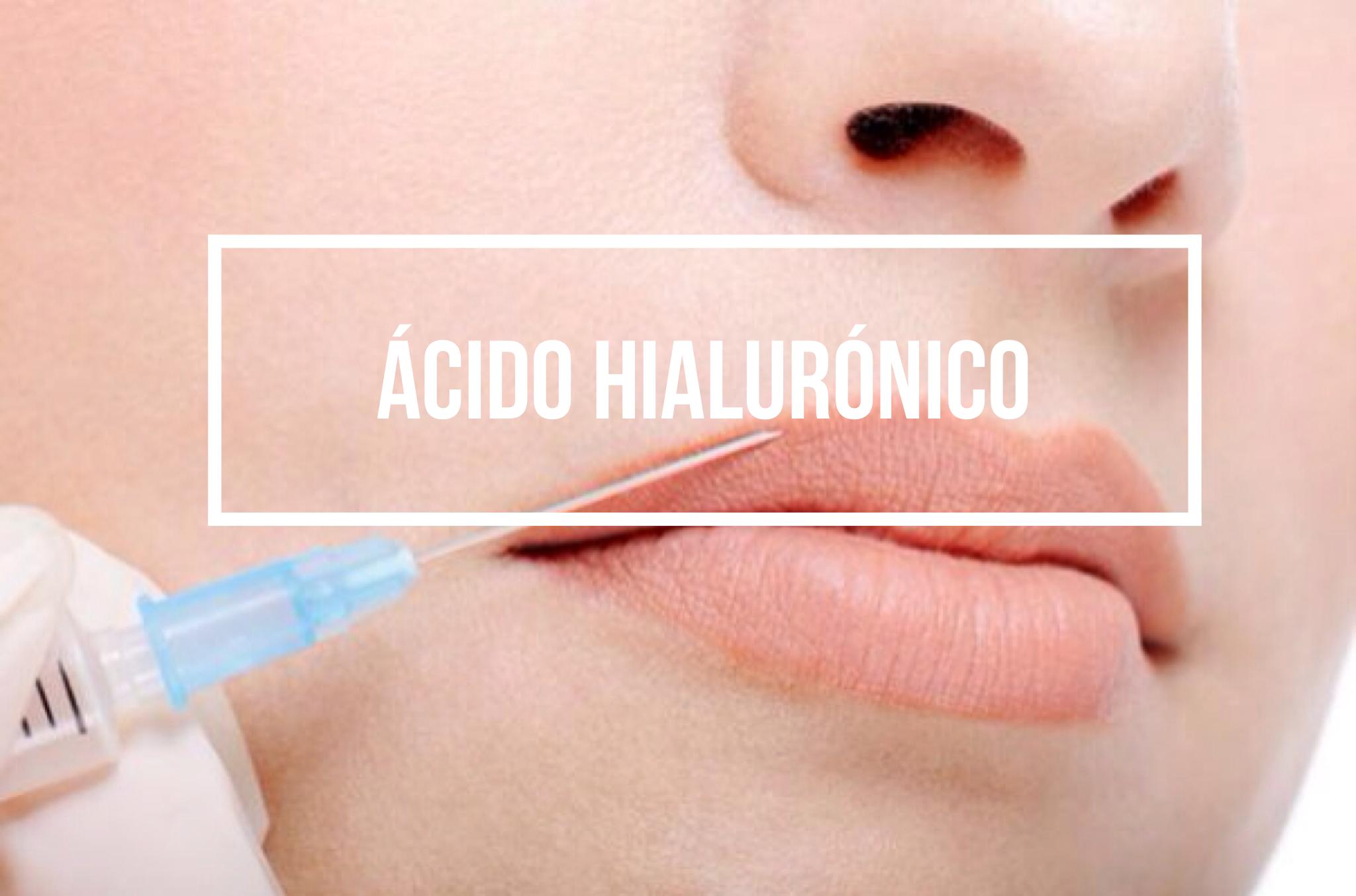 Rejuvenecimiento facial con ácido hialurónico, ¿qué es?