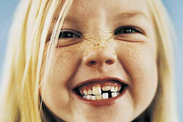 Clinica de ortodoncia Madrid