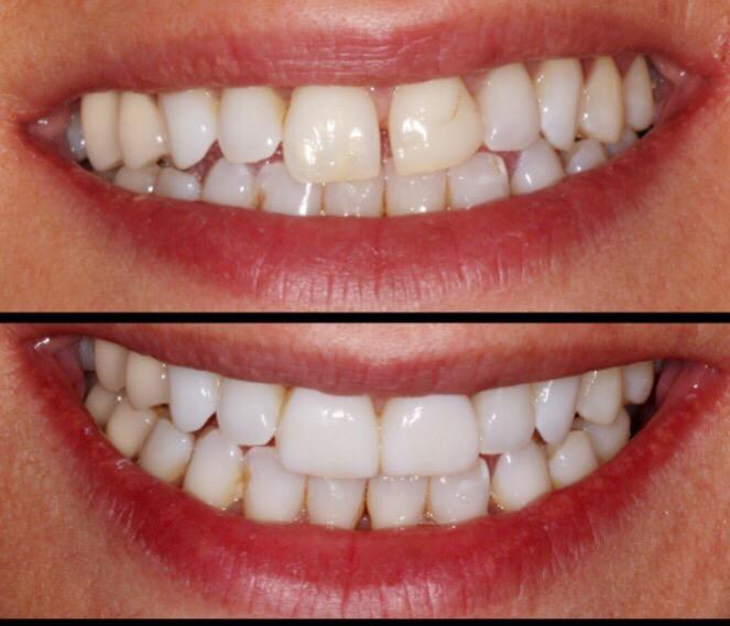 Espacio entre dientes: carillas de composite