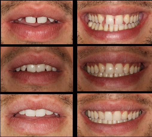 Tratamiento Multidisciplinar: Ortodoncia + carillas dentales