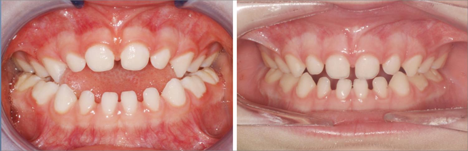 ortodoncia y chupete madrid