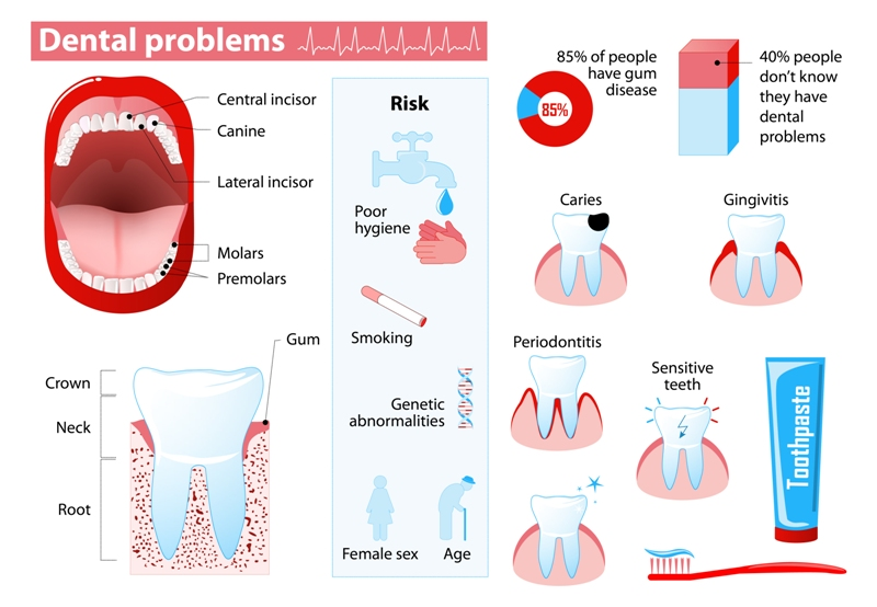 limpieza dental madrid