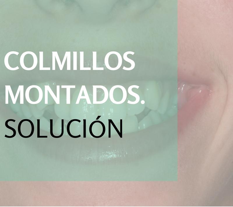 Ortodoncia: solución para los colmillos montados
