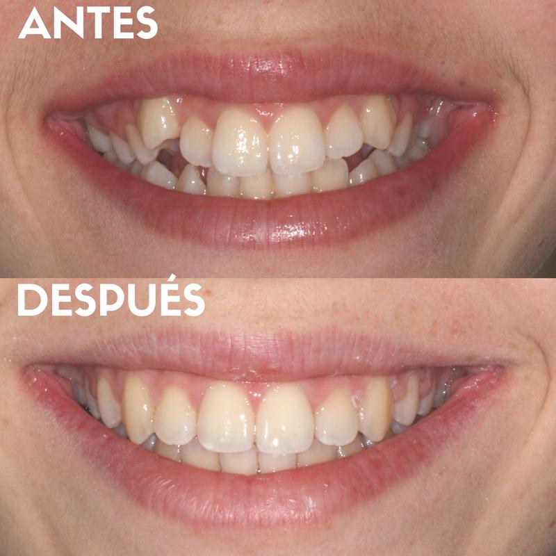 ortodoncia brakets metalicos madrid