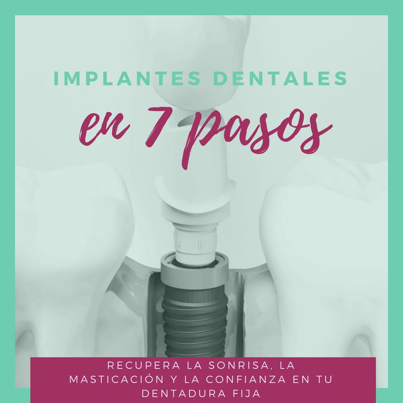 Implantes dentales en 7 pasos