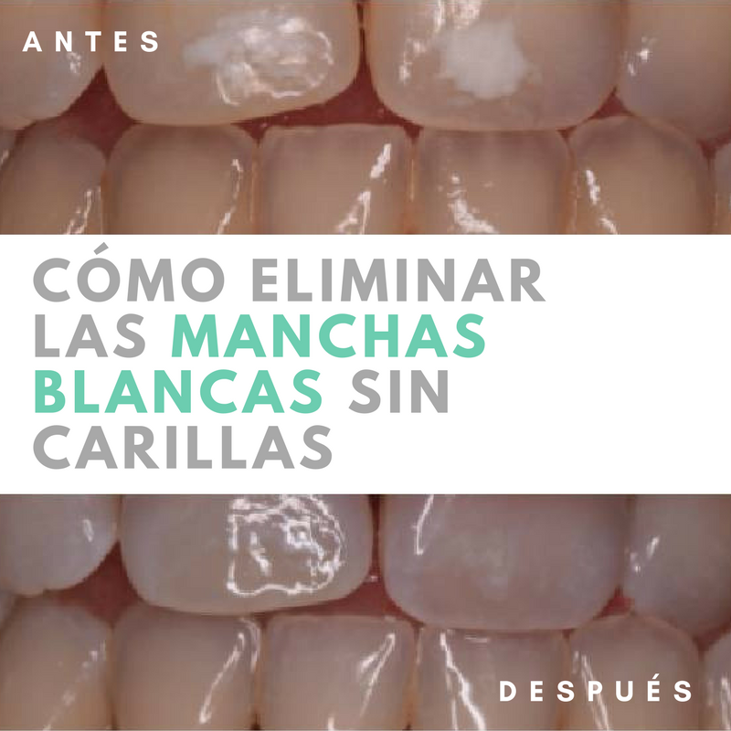 ¿Se pueden quitar las manchas blancas de mis dientes sin necesidad de carillas dentales?