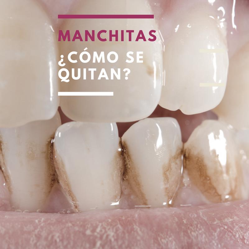 Manchas marrones en los dientes: ¿Se quitan fácilmente?