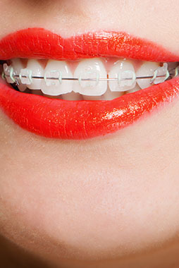 ortodoncia brackets clinica dental