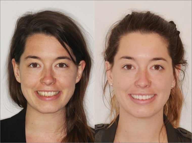 Antes y despues ortodoncia invisalign