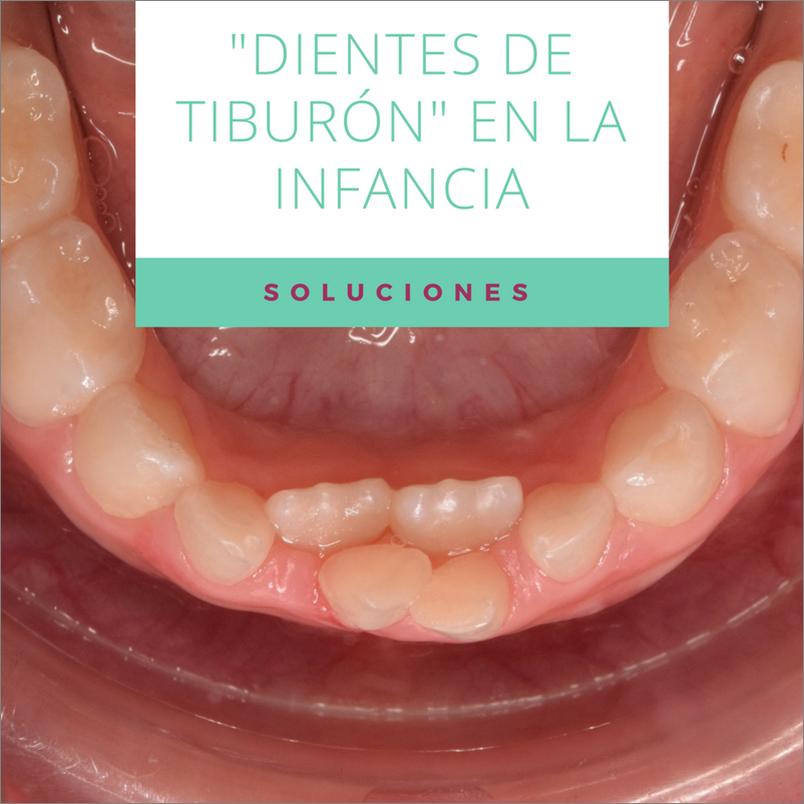Dientes permanentes que salen por detrás de los dientes de leche: ¿qué hacemos?