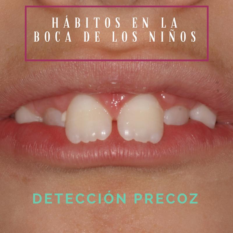 Hábitos en la boca de los niños: detección precoz