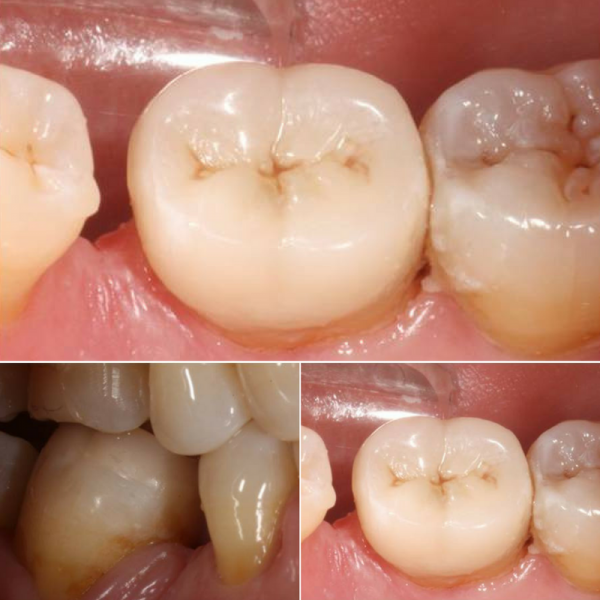 resultado incrustacion dental madrid
