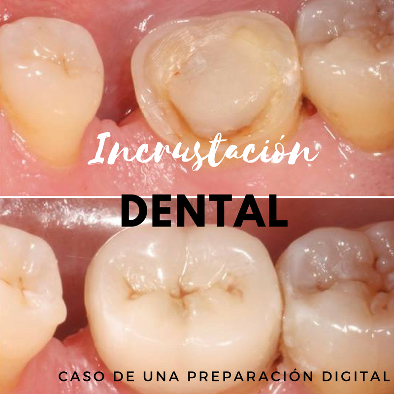 Incrustación dental: caso de una preparación digital