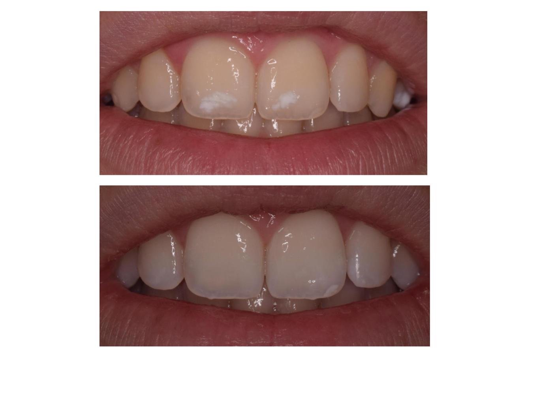 Manchas blancas dientes - Manchas blancas en la pared ...