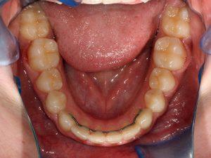 retenedores dentales fijos rotura