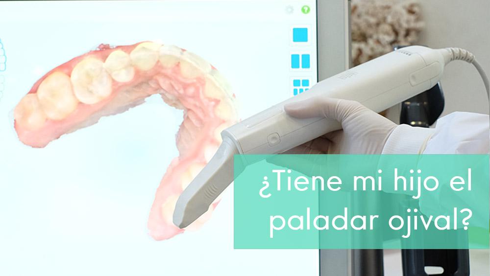 ¿Es la ortodoncia la solución para el paladar ojival?