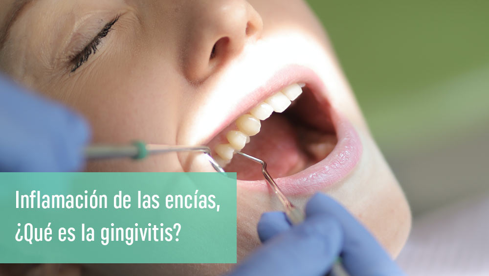 Gingivitis: ¿encías inflamadas y sangrantes?