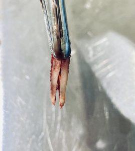 diente partido solucion