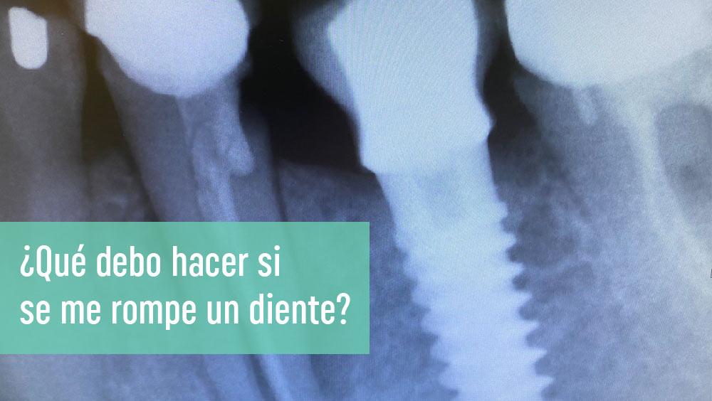 ¿Qué debo hacer si se me rompe un diente?